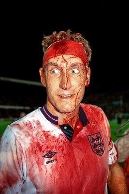 Terry Butcher Blood portrait